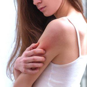 【敏感肌の常識】冬の乾燥肌がうるおう4つの方法Q&A(全身編)