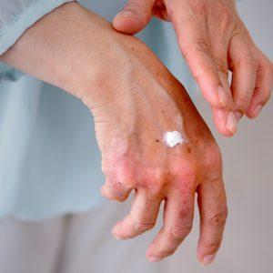 【緊急特集】その手のカサカサがウイルスの温床に?!~正しいハンドケアで手荒れ&ウイルス対策~